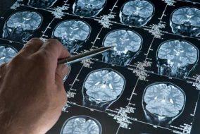 5 Alzheimer's Disease Treatment Stocks