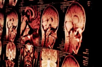 Investing in Glioblastoma Treatments